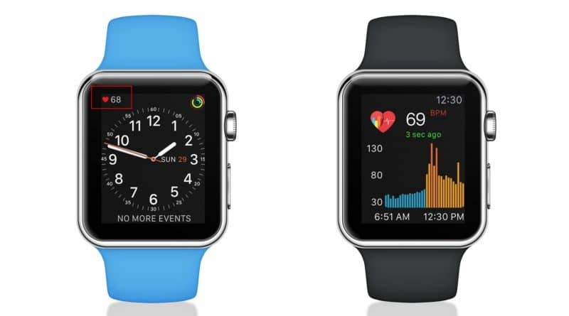 Cardiogram raises $2m to foretell atrial fibrillation using Apple Watch