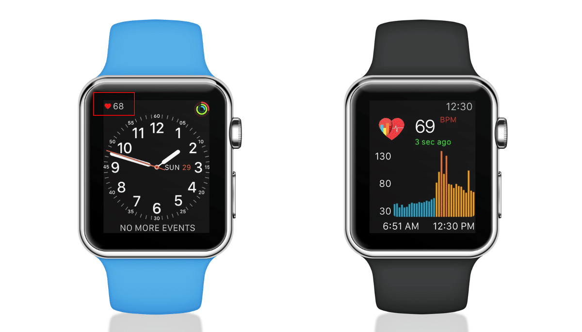 apple watch can detect diabetes with 85 accuracy according to new study - Wearables can detect early signs of diabetes with 85% accuracy says new study