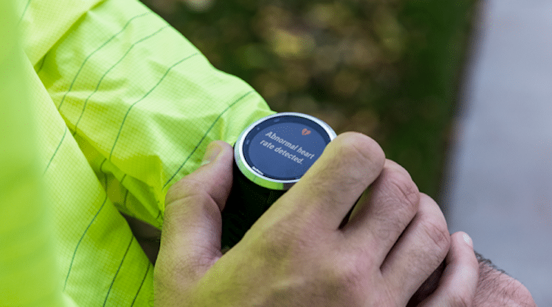 Here is how to set up the new irregular heart beat alerts on your Garmin wearable