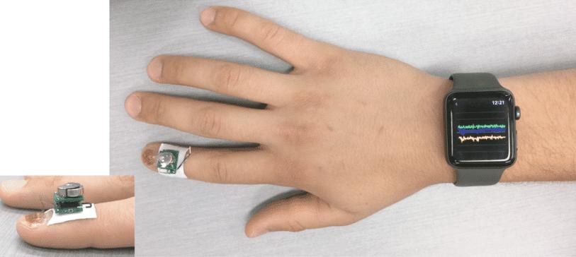 IBM's tiny fingernail sensor monitors diseases & movement disorders