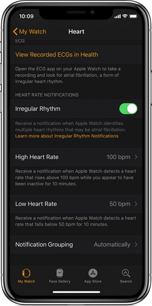 apple releases ecg app and irregular rhythm notifications in europe and hong kong 510x1024 - Apple releases ECG app and irregular rhythm notifications in Europe & Hong Kong