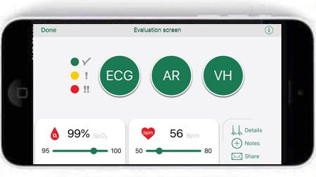 review wiwe a business card sized clinical grade ecg monitor 9 - Review: WIWE, a business-card sized clinical-grade ECG monitor