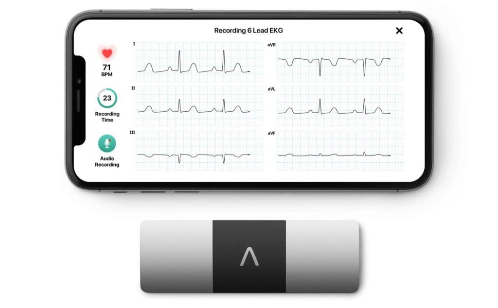 alivecor s kardiamobile 6l is an fda approved 6 lead ekg 2 1024x634 - AliveCor's KardiaMobile 6L is an FDA-approved 6-lead EKG
