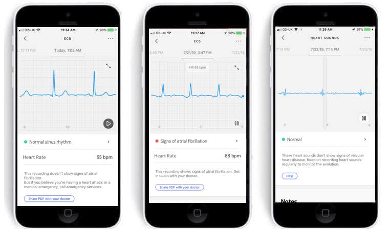 withings bpm core review get a complete heart health checkup in a couple of minutes 1 - Withings BPM Core review: a complete heart health checkup with one device