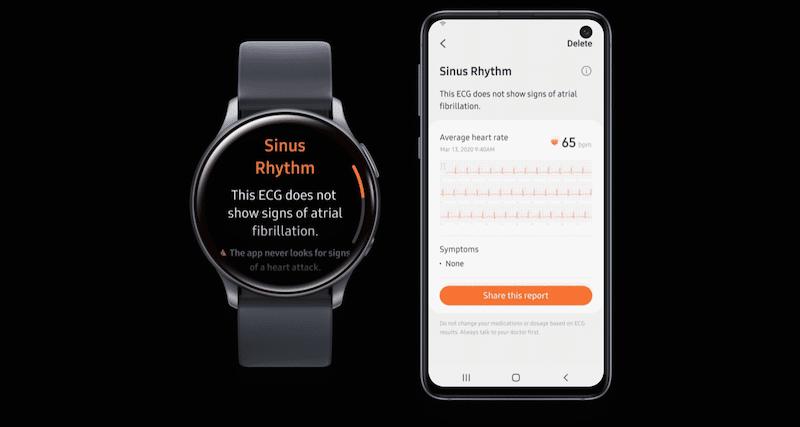 samsung galaxy watch active 2 ecg is still work in progress - Samsung Galaxy Watch Active 2 gets clearance to monitor ECG