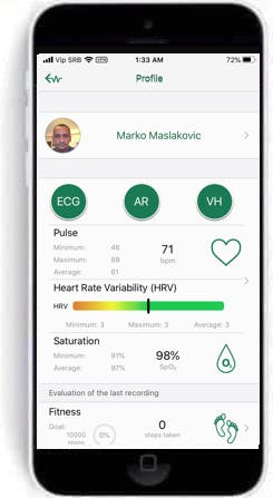 wiwe ecg monitor gets the ability to take hrv measurements 1 - WIWE ECG monitor gets the ability to measure HRV
