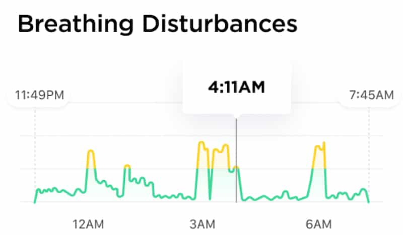 scanwatch gets oxygen saturation during sleep breathing disturbances 2 - ScanWatch gets oxygen saturation during sleep & breathing disturbances graph
