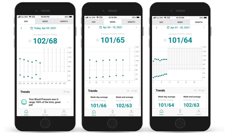 aktiia review measure blood pressure without the hassle 7 - Aktiia bracelet review: cuff-like blood pressure monitoring from the wrist